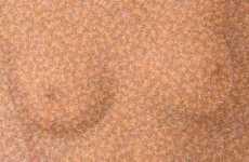 32,000 Barbies Represent Real Boob Jobs